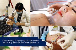 Các phương pháp trị mụn tại Dr Huệ Clinic spa