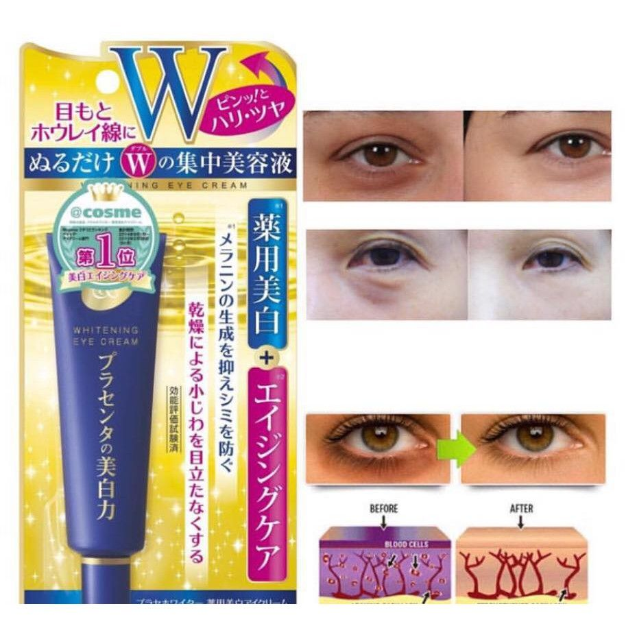 Meishoku Whitening Eye - Kem mắt tốt nhất thị trường hiện nay