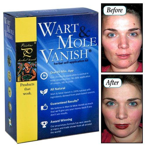 Wart And Mole Vanish - Thuốc trị mụn ruồi tốt nhất hiện nay